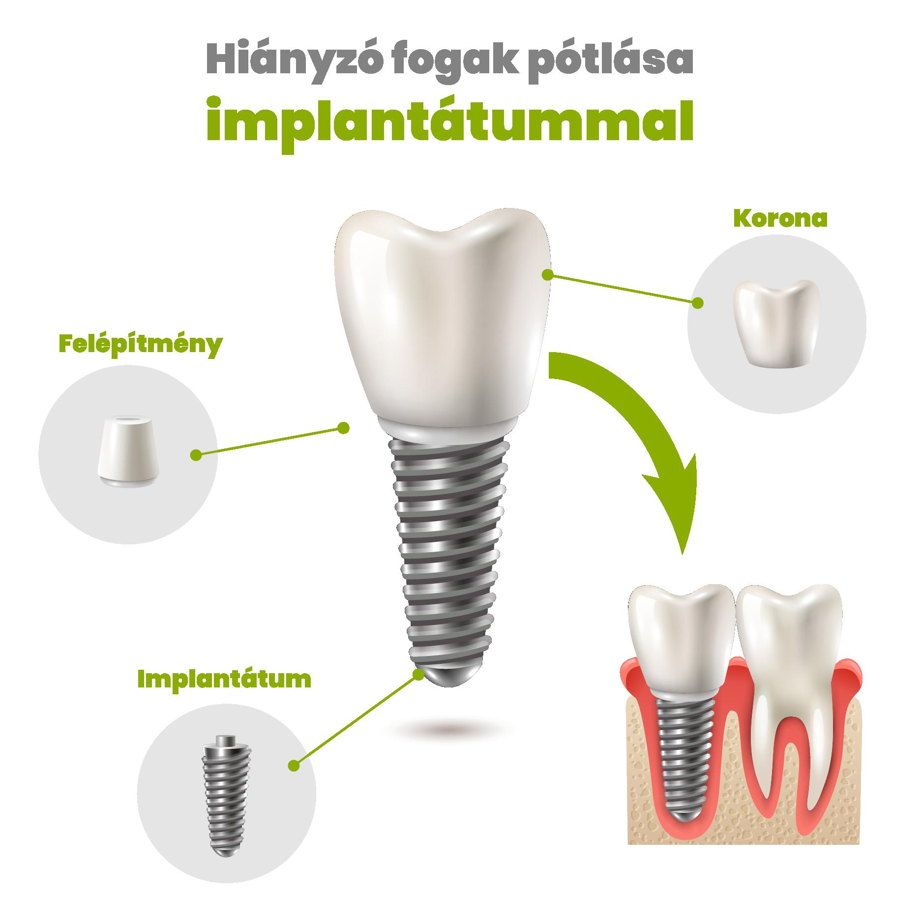 implant-01